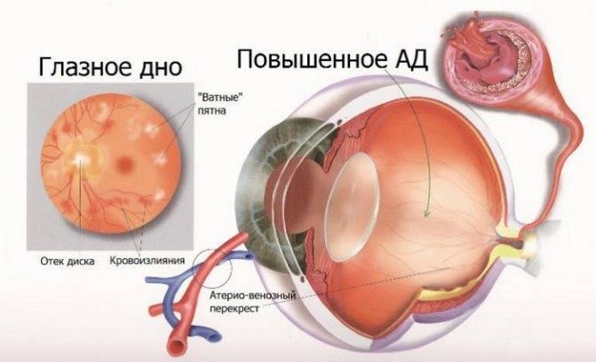 7 причин офтальмогипертензии и возможные осложнения - мед портал tvoiamedkarta.ru