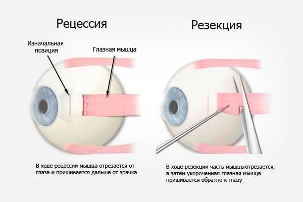 Глаза больше не будут разбегаться! операция детям на косоглазие: удачно ли проходит?