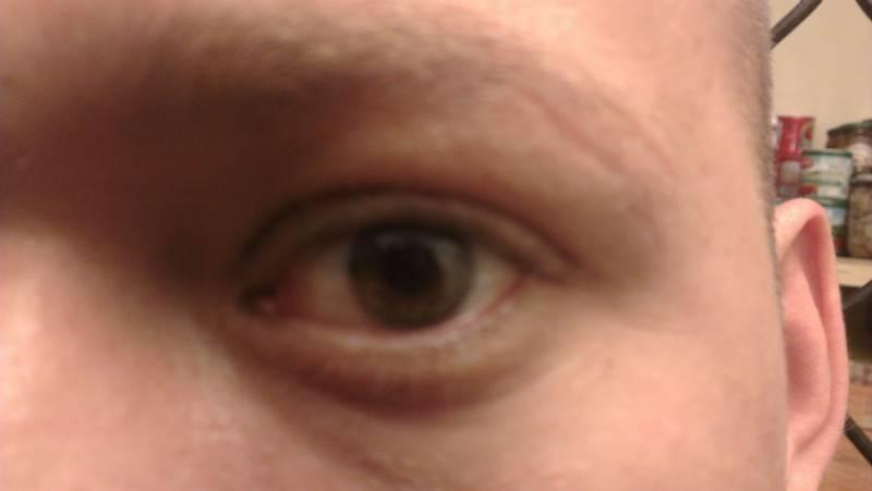 Опух глаз верхнее веко: что делать в домашних условиях