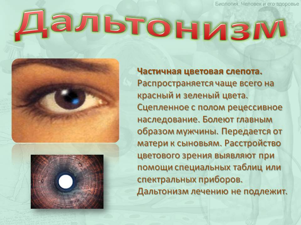 Фотопсия: причины заболевания, что это такое, симптомы и возможное лечение