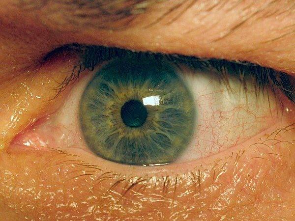 Голубой белок в глазах у детей. почему у ребенка серые белки глаз? синдром голубых склер – симптомы заболевания