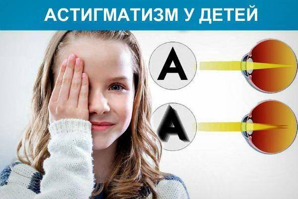 Астигматизм у ребенка 2 года: симптомы, диагностика и методы лечения