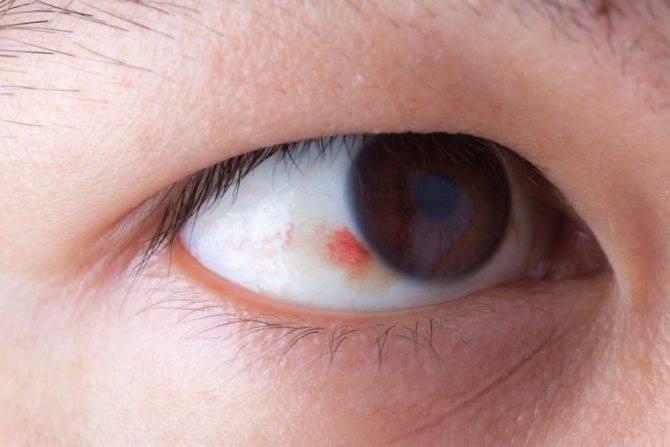 Причины и лечение царапины роговицы глаза - медикконсультант