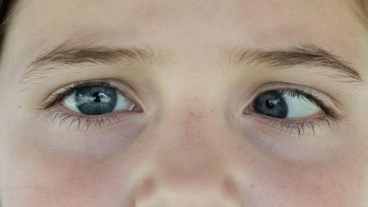 Расширенные зрачки у подростков и детей