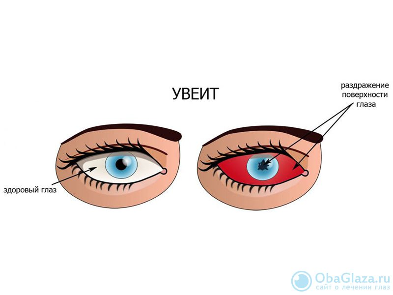 """Увеит глаза: симптомы и лечение - """"здоровое око"""""""