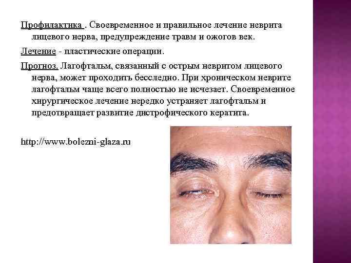 Статья medportal.org: амблиопия: как научить «ленивый глаз» работать.