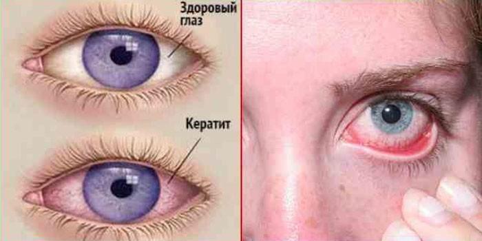 Воспаление роговицы глаза