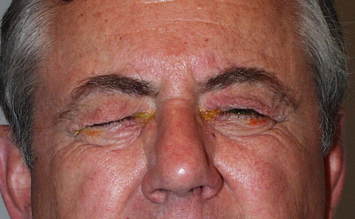 Блефароспазм - причины, симптомы, лечение