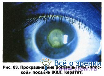 Опасные ошибки тех, кто носит контактные линзы