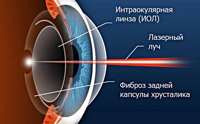 Помутнение задней капсулы хрусталика глаза: причины и лечение (лазерная дисцизия)