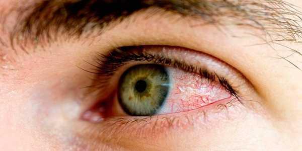 Контузия глаза последствия, степени тяжести, лечение