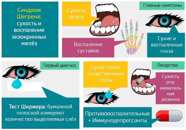 Шегрена болезнь — большая медицинская энциклопедия
