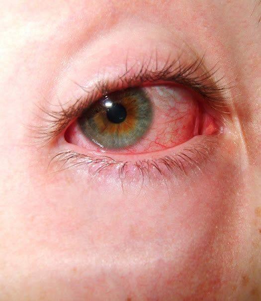 Как убрать красноту вокруг глаз и на лице в домашних условиях
