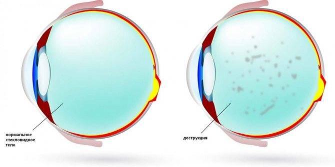 Деструкция стекловидного тела глаза: причины, симптомы, методы лечения