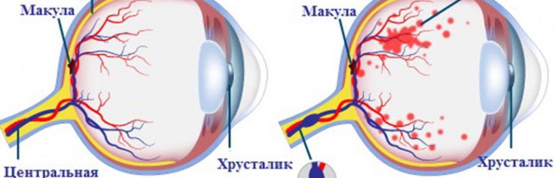 Страшные последствия для зрения! фоновая ретинопатия и ретинальные сосудистые изменения: что это такое
