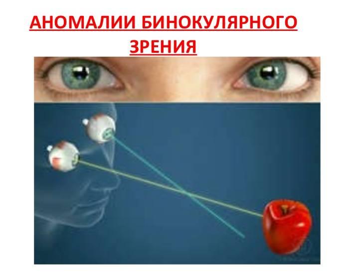 """Бинокулярное зрение: механизм работы - """"здоровое око"""""""