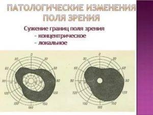 Стереоскопическое зрение: что это, как работает, как измеряется?