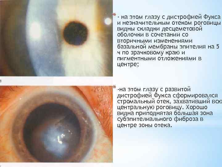 Способ лечения эндотелиально-эпителиальной дистрофии роговицы глаза