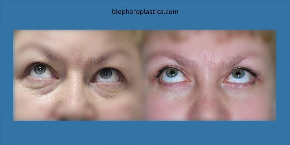 Есть ли возможность избавиться от грыж под глазами без операции