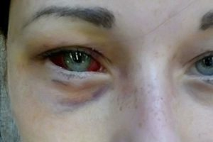 Сколько проходит синяк под глазом: стадии по дням до исчезновения и подход к лечению недуга