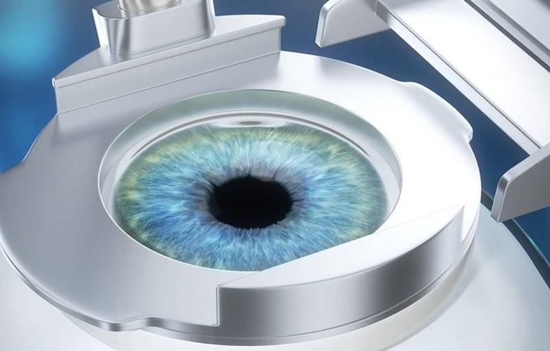 Лазерная коррекция близорукости: отзывы, цена, противопоказания при лечении зрения лазером