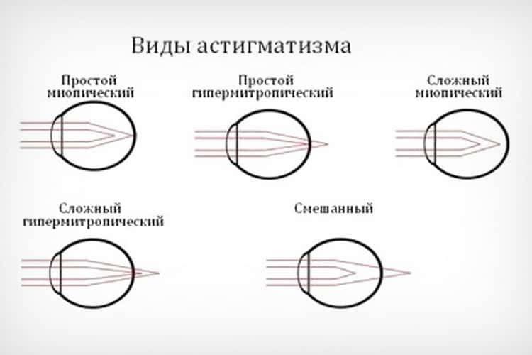 Всё о сложном астигматизме: симптомы, осложнения, методы коррекции