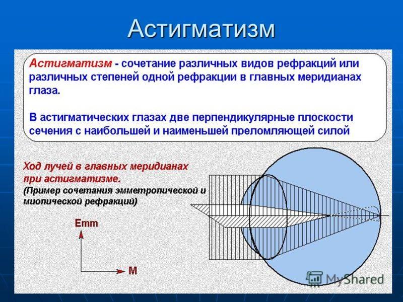 Что такое пересчёт астигматических линз и зачем он нужен - популярные болезни