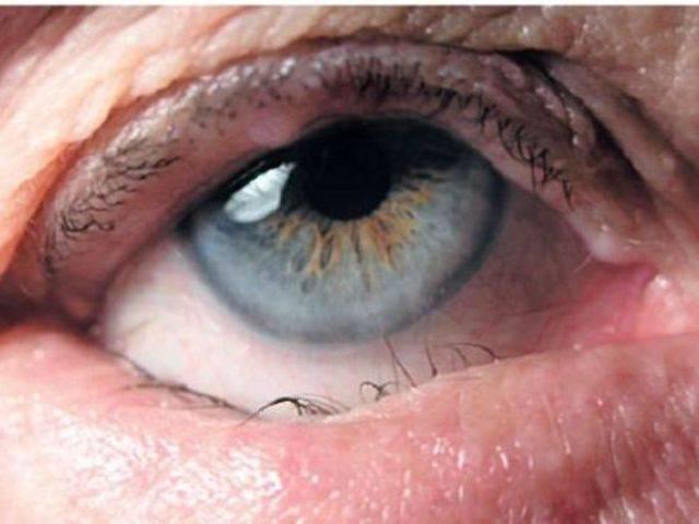 Трахома. причины, симптомы, лечение трахомы.