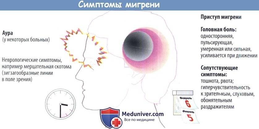 Мерцательная скотома (глазная мигрень): характерные признаки и способы лечения - лечение глаз