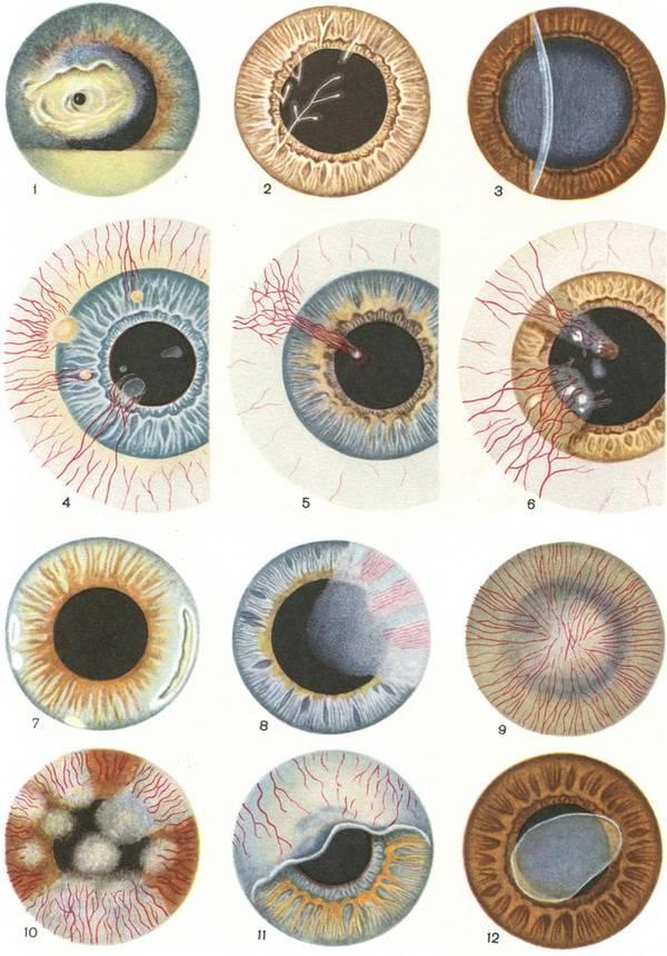Кератит: симптомы, фото, лечение. чем лечить кератит глаза