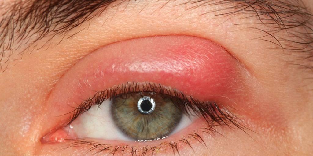 Простудана глазу: что это и как грамотно лечить