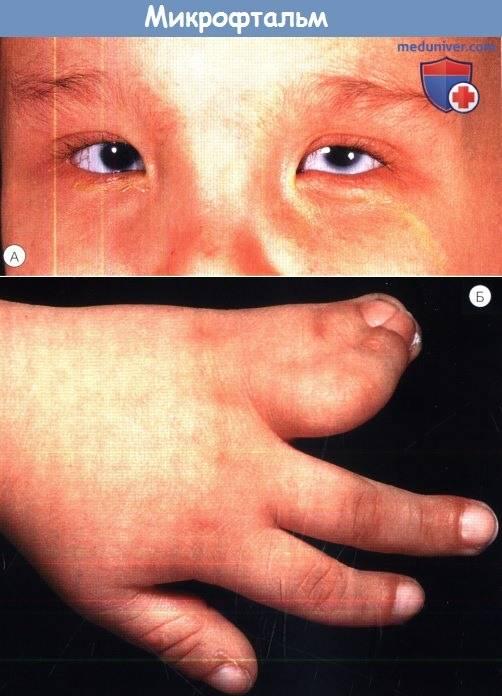 Микрофтальмия: что это такое, микрофтальм у детей, причины, симптомы и лечение oculistic.ru