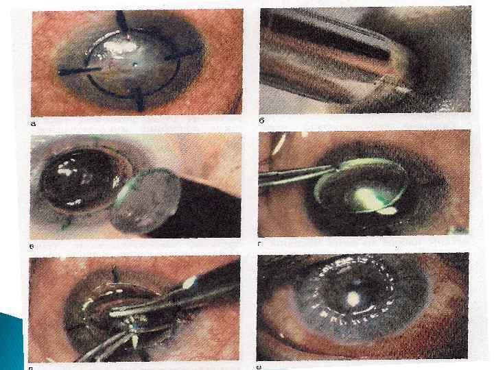 Пересадка роговицы (кератопластика) | компетентно о здоровье на ilive