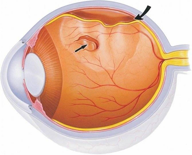 Ангиопатия сетчатки по смешанному типу - что это такое, что делать, чтоб не потерять зрение, лечение у ребенка и при беременности