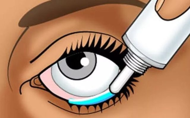 Алгоритм закладывания мази в глаза новорожденному - wikimed+24.ru