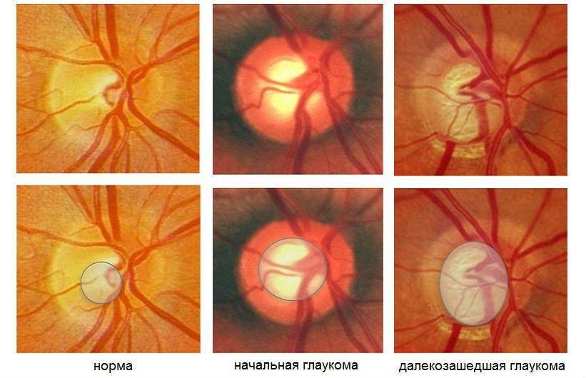 Глаукома 2 степени: как вовремя определить и вылечить?