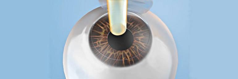 Presbylasik (пресбиласик) - лазерная коррекция возрастной дальнозоркости (пресбиопии)