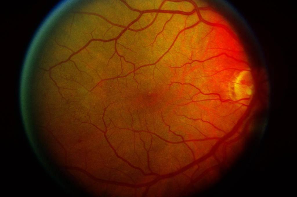 Диабетическая ретинопатия: что это такое, лечение, причины, симптомы, стадии, диагностика, профилактика, осложнения