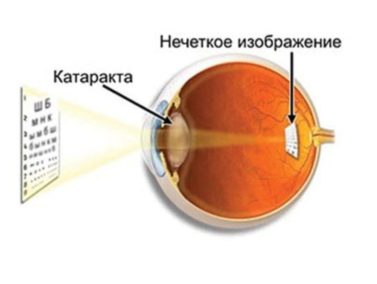 После операции катаракта глаза немного двоится
