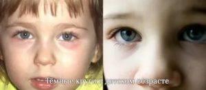 Почему у ребенка мешки под глазами и что делать?