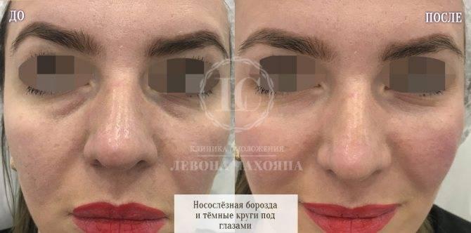 «троксевазин» в косметологии для лица – от отеков под глазами и пигментных пятен, от морщин и прыщей
