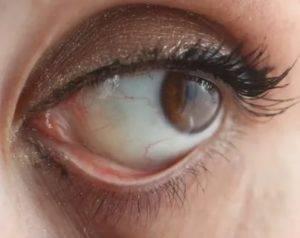 Причины желтых белков глаз: какую болезнь надо лечить?