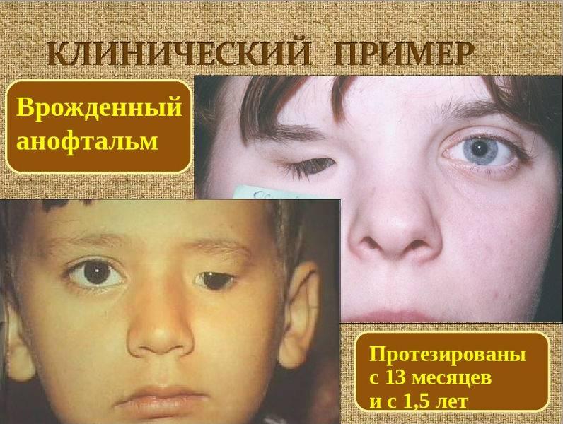 Причины, симптомы, виды и методы лечения микрофтальмии