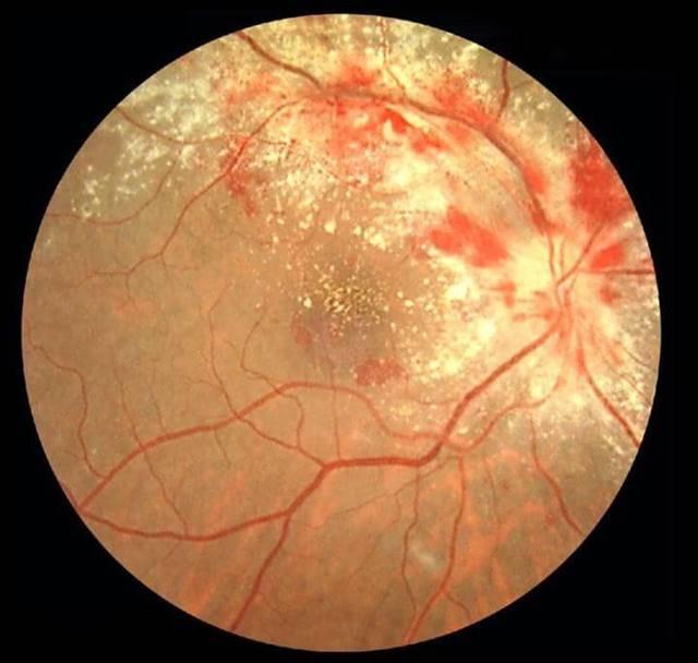 Ретинит глаза: виды (пигментный, коатса, цитомегаловирусный), причины, диагностика, симптомы и лечение, последствия и профилактика + фото
