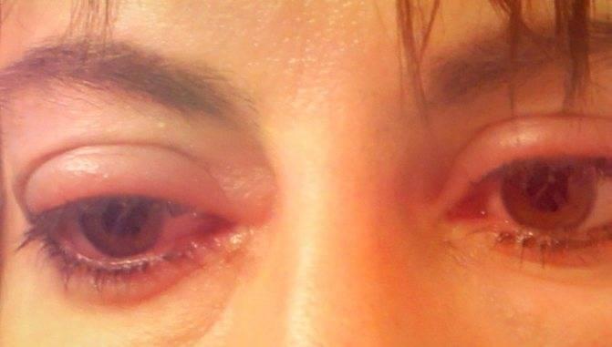 Как быстро убрать отеки с глаз после сна утром в домашних условиях