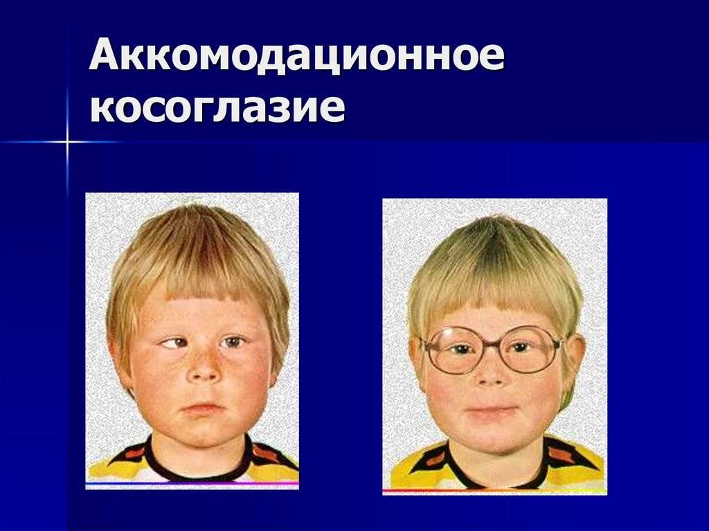 Содружественное косоглазие: что это, признаки сходящейся и расходящейся форм, операция у детей