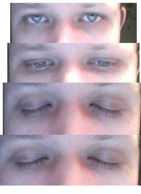 Сколько времени проходит синяк — красивое лицо