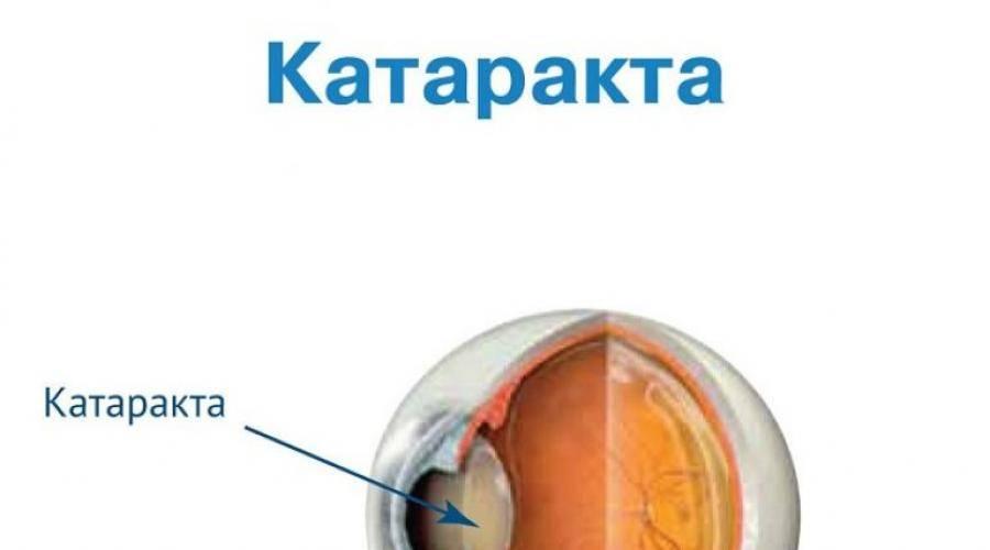 Памятка для пациентов, перенесших операцию по поводу катаракты
