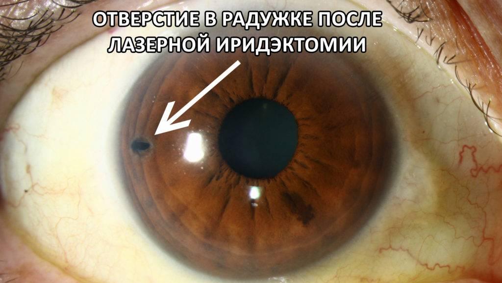 Лечение глаукомы лазером: проведение операции, трабекулопластика