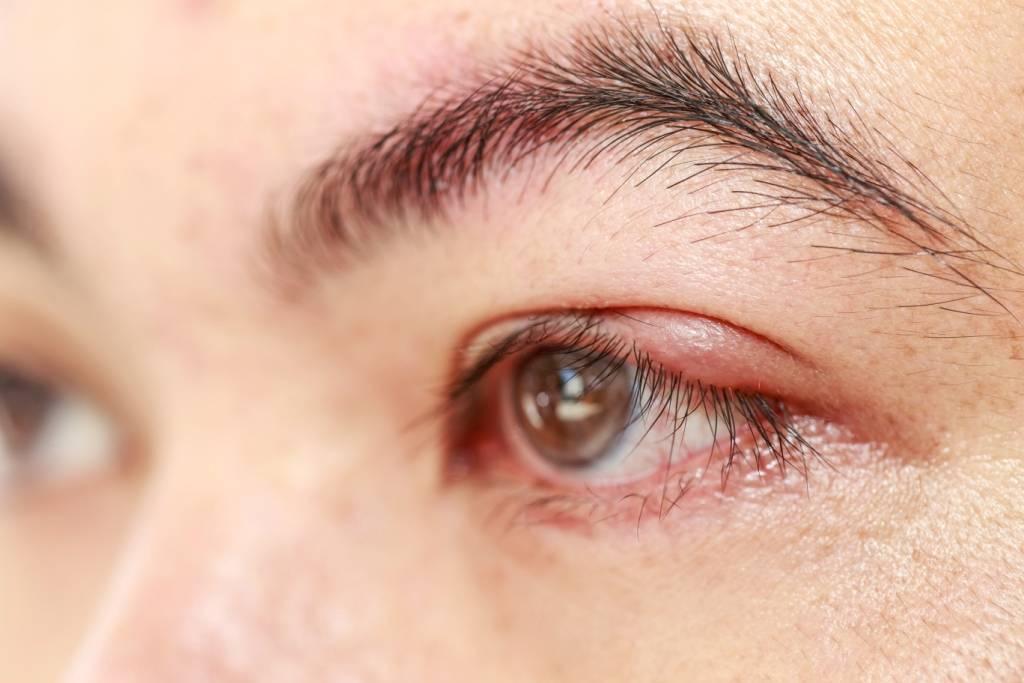 """Простуда глаза: понятие, симптомы, лечение - """"здоровое око"""""""